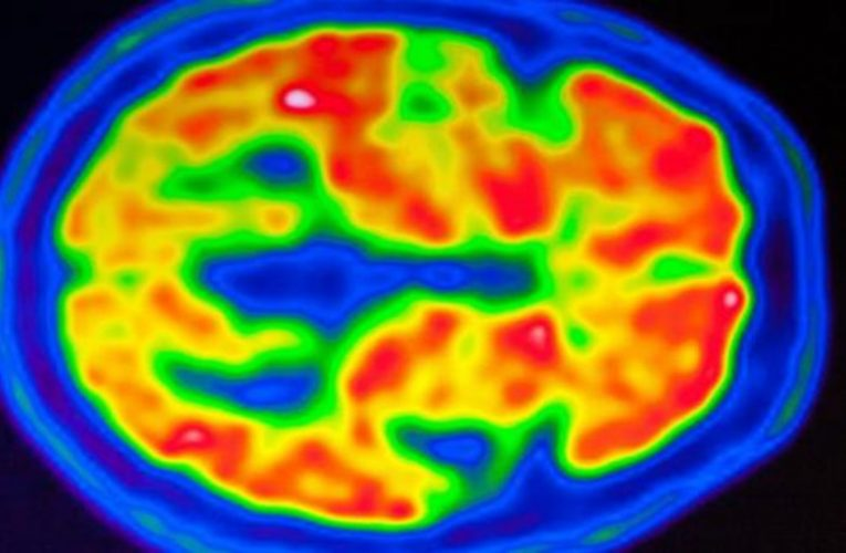 Reasonable doubts about the drug approved for Alzheimer's