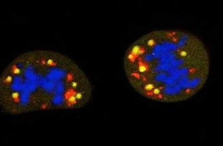 These cells hide the cancer and are activated to metastasize