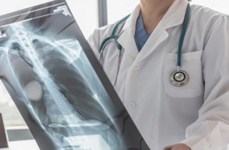 These are the symptoms and profile of the patient with the most aggressive lung cancer